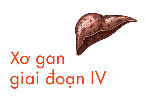 xo-gan-giai-doan-4